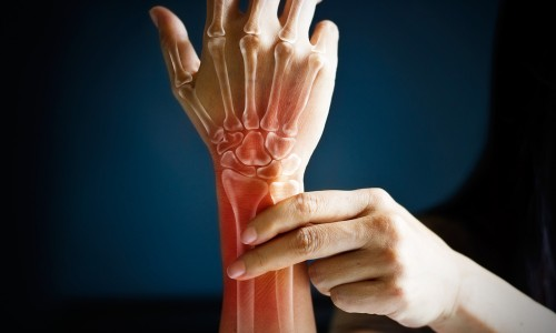Woman holding wrist with bones superimposed